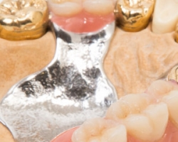 Sell Dental Gold